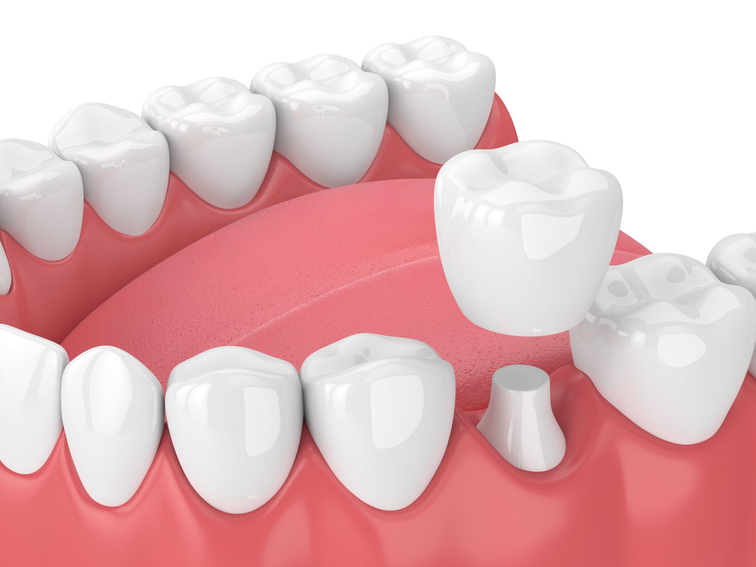 dental crown rendering